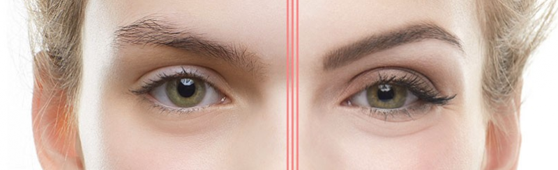 Before and after wax picture of a pair of eyebrows